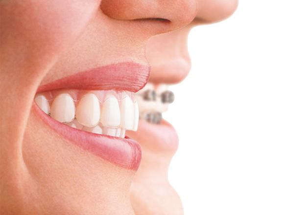 Unsichtbare Zahnspange von Zahnarzt 1100 Wien