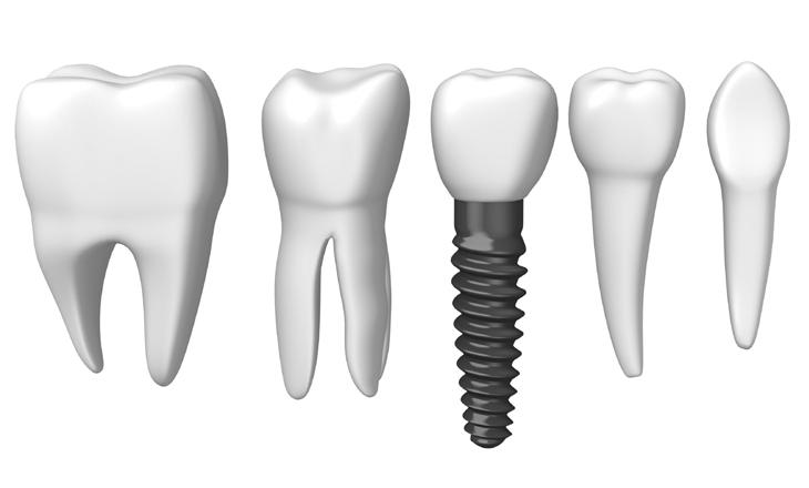 Implantate von Zahnarzt 1100 Wien