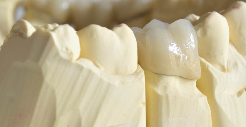 Kronen von Zahnarzt 1100 Wien