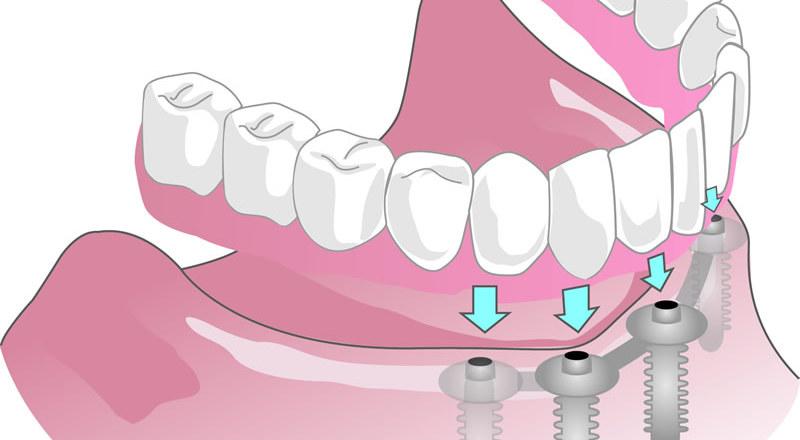 lockerer Prothese von Zahnarzt 1100 Wien